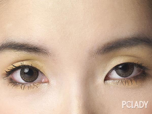 双眼皮怎么变单眼皮怎么办